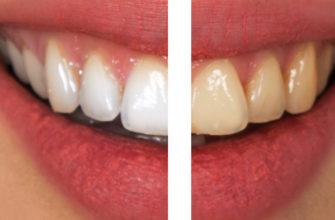 Ошибки при чистке зубов